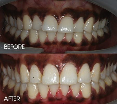 Clear braces – Case 5