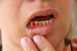 The high cost of cut-price dentistry