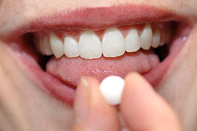 Dental implant failure rate higher in people taking antidepressants