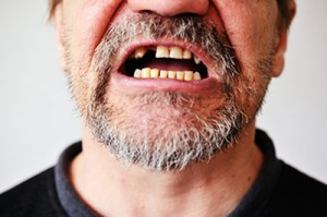Link discovered between tooth loss and slowing mind and body