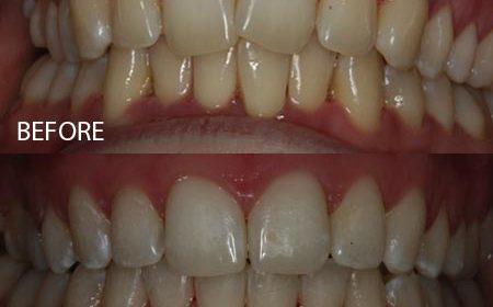 Six Month Smiles – Case 1