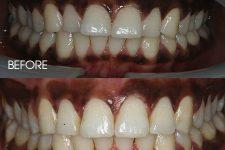 Clear braces – Case 5