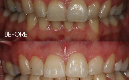 Ceramic 'Ice' braces