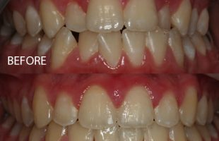 Damon braces – Case 4