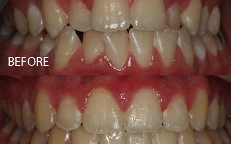 Damon braces – Case 4