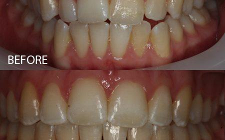 Damon braces – Case 14
