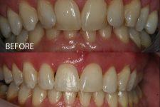 Clear braces – Case 2