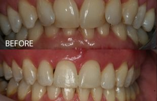 Clear braces – Case 2
