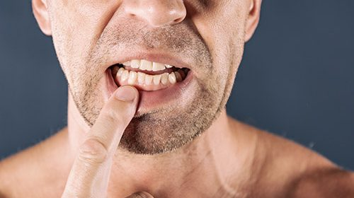 Gum disease and cancer
