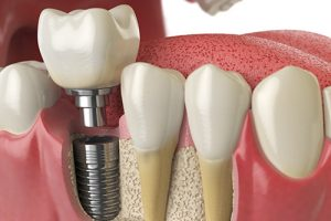 AI helps predict treatment outcomes for patients with diseased dental implants