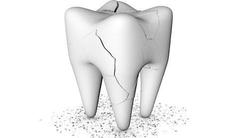 How do you know if you have a cracked tooth?