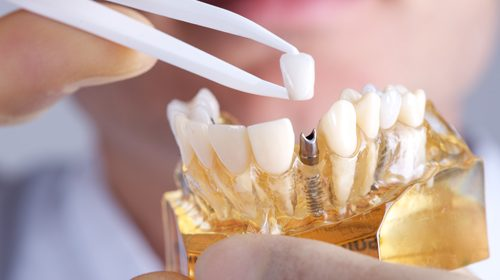 New study identifies successful method to reduce dental implant failure