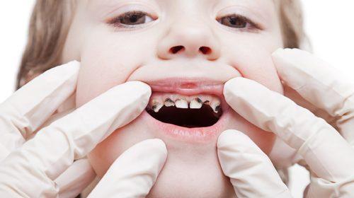 Rotten teeth in children