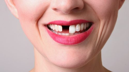 Tooth loss and chronic disease