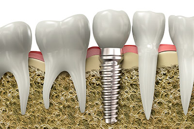 If a dental implant fails, try again