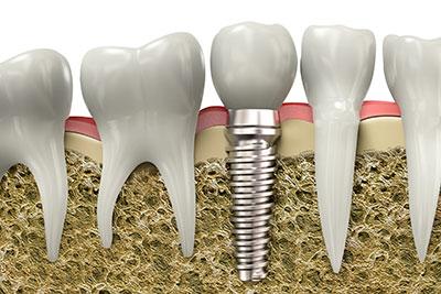 If a dental implant fails, try again