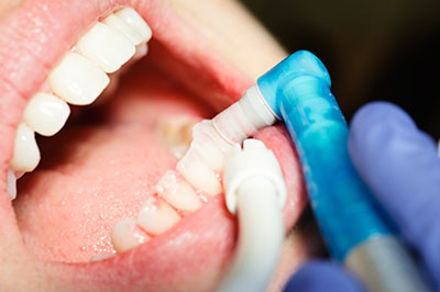 Obesity may hamper gum disease treatment