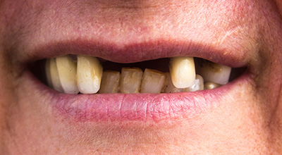 Missing teeth may predict future cardiovascular events