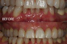 Clear braces – Case 1