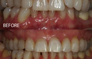 Clear braces – Case 1