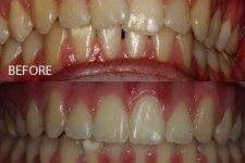 Damon braces – Case 1