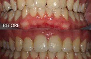Damon Braces – Case 2