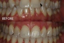 Damon braces – Case 3