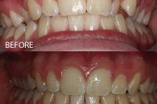 Damon braces – Case 5