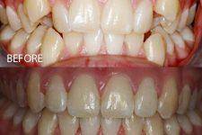 Damon braces – Case 6