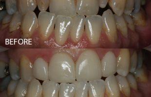 Pre-restorative orthodontics