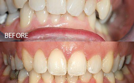 Clear braces – Case 3