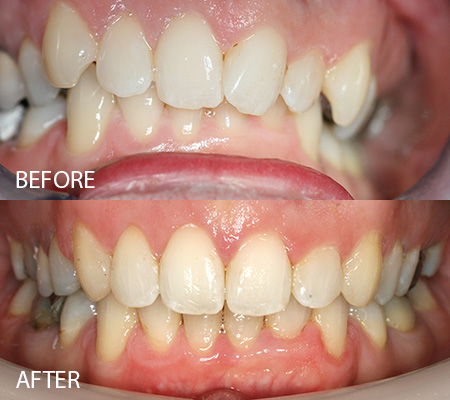 Clear braces – Case 3