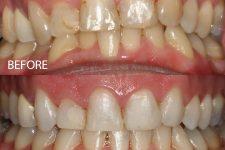 Clear braces – Case 4