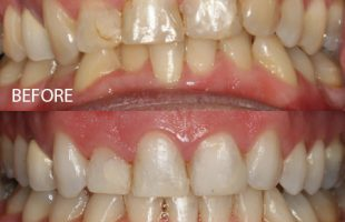 Clear braces – Case 4