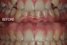 Damon braces – Case 8