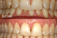 Damon braces – Case 9