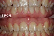 Damon braces – Case 11