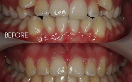 Damon braces – Case 12