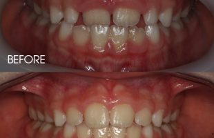 Interceptive orthodontic