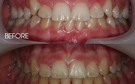 Damon braces – Case 13