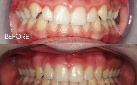 Damon braces – Case 15