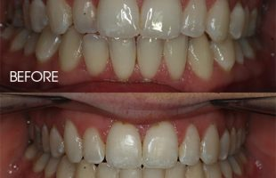 ICE Ceramic Braces