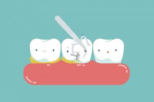An army of micro robots can wipe out dental plaque